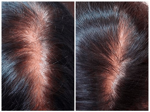 picture Mesotherapy hair growth
