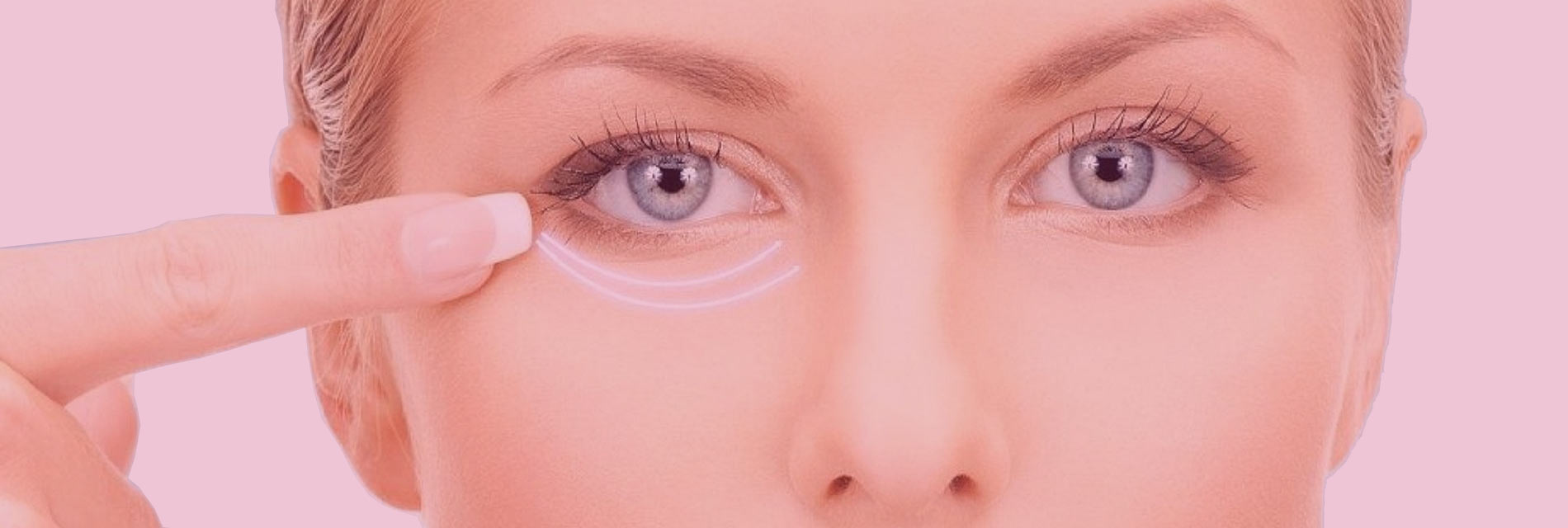 picture Lower eyelid surgery