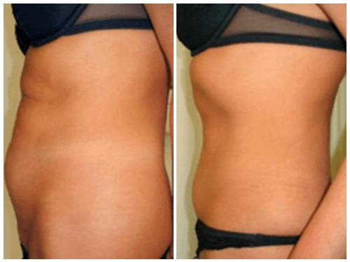 image Body fat dissolving injections