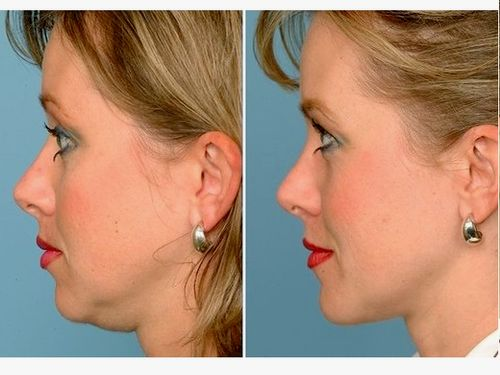 image Double chin removal, Lipolysis